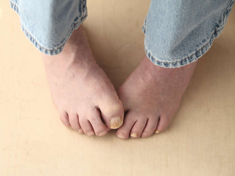 Cure Toenail Fungus Naturally: Home Remedies to Treat Toenail Fungus | Nail  Fungus Treatment