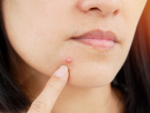 The link between food and acne