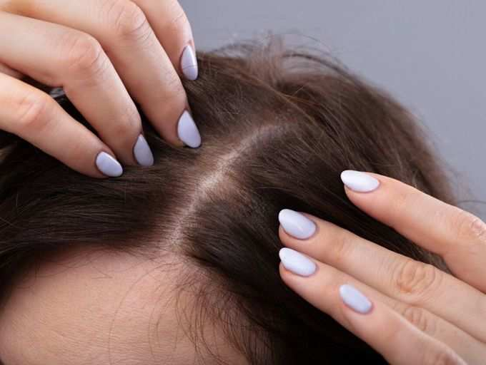 To of acne rid 🌱 get how scalp Scalp Acne: