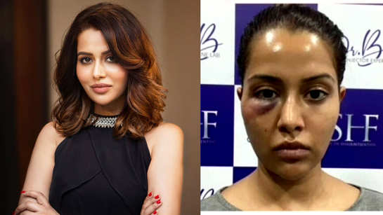 Tamil actor Raiza Wilson blasts dermatologist for allegedly forcing her to undergo a dermatological procedure, shares pic after it goes wrong