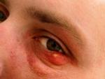 Bumps on eyelids