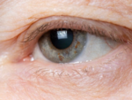 Ptosis or droopy eyelids