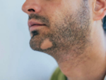 Facial hair loss