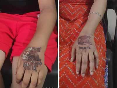 Quarantine stamp leaves 5 of a Surat family with blisters