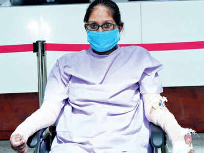 Mother of one-yr-old kid beats Covid, recovers from 71% burns