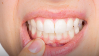 New study wants to explore link between obesity and gum disease