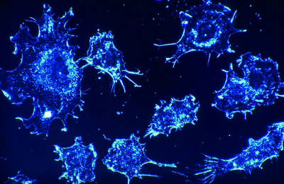Colorectal cancer, a clear, present danger