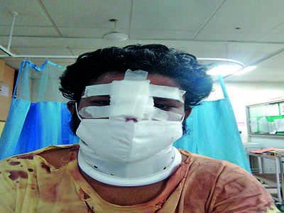 Shopkeeper breaks man's nose over gutka