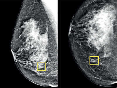 Google AI could improve breast cancer detection