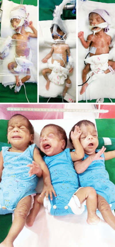 Born 13 weeks premature, India's second lightest triplets win fight for life