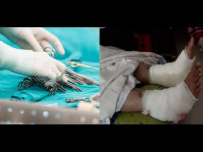 Kerala: Government doctor makes medical blunder after operating on wrong leg