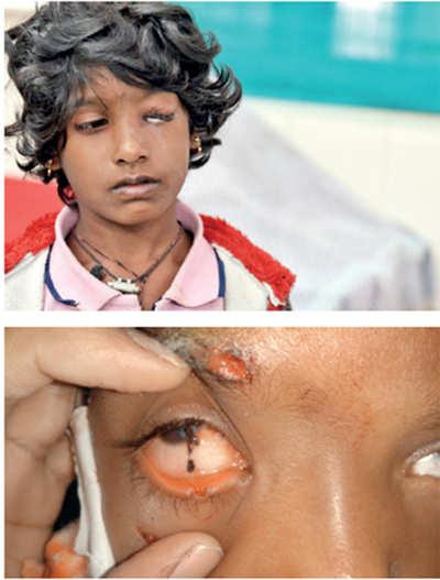 Eye injuries dull Deepavali sparkle