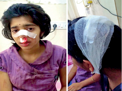 Auto driver breaks nose of 16-year-old for being nosey