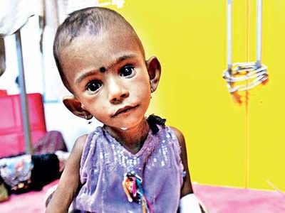 Gujarat has over 3.8L malnourished children