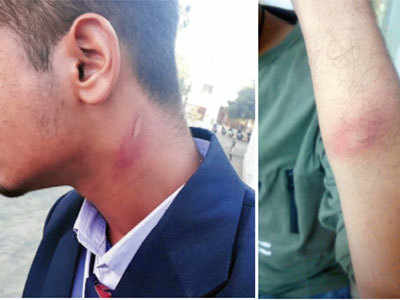 Mundra: Drunk school guard assaults student, held