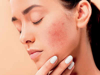 Skincare against skinfections