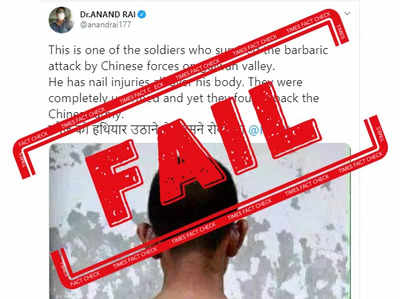 Fact check: This viral image is not of injured Indian soldier in Galwan clash with China