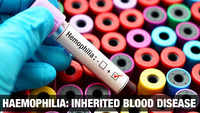 Haemophilia explained: Rare but life-threatening disorder