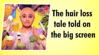 The hair loss tale told on the big screen