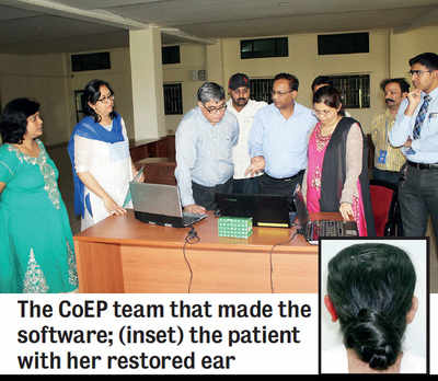 CoEP software helps carve prosthetic ear
