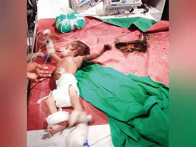 Four-month-old boy loses left arm and ear in KEM ICU fire