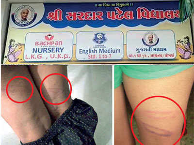 Mathematics teacher settles score with students, beats them with pipe in Morbi school
