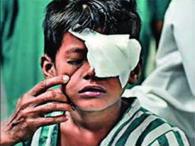 Four boys injured in cracker accidents