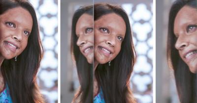 Deepika Padukone as acid attack survivor