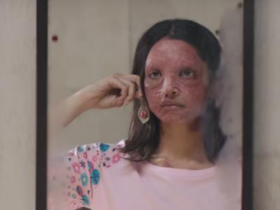 Deepika Padukone asks TikTok influencer to recreate Chhapaak 'look', draws social media ire