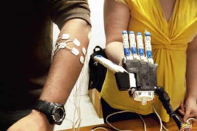 3D-printed smarter, cheaper prosthetics
