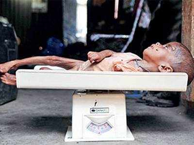 Gujarat has over one lakh malnourished children