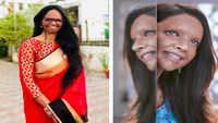 'Chhapaak': Laxmi Agarwal gets emotional, remembers horrifying acid attack incident
