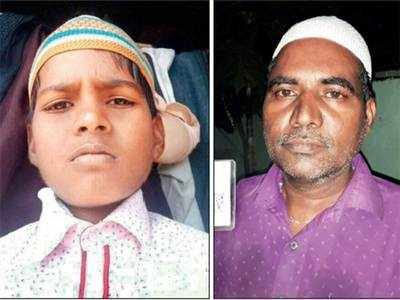 Boy dies after being attacked by goat in Vikhroli area, police register accidental death report