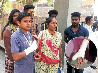 Teacher broke my hand, class 10 student alleges