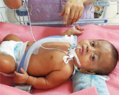 Premature baby struggles for life for seven months