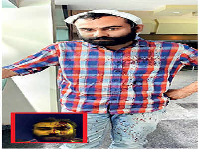 Height of Auto-cracy: Beware of criminals, he said & then hit him with an iron rod