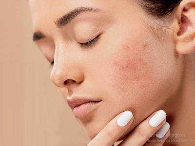 How to Prevent Teenage Acne