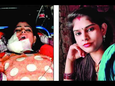 Uttar Pradesh: Jaw blown off, long haul for dancer shot in face