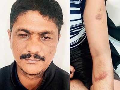 Hsg society chairman brutally beaten for enforcing parking rule