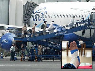 Passenger tumbles down plane ramp; injures ankle, knee