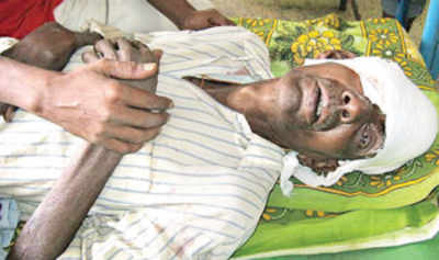 Man assaulted for thwarting daughter's rape loses eye