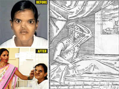500-yr-old Tagliacozzi method helps 18-year-old get her nose back