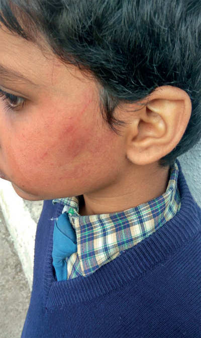 Teacher slaps 10-yr-old for not doing homework