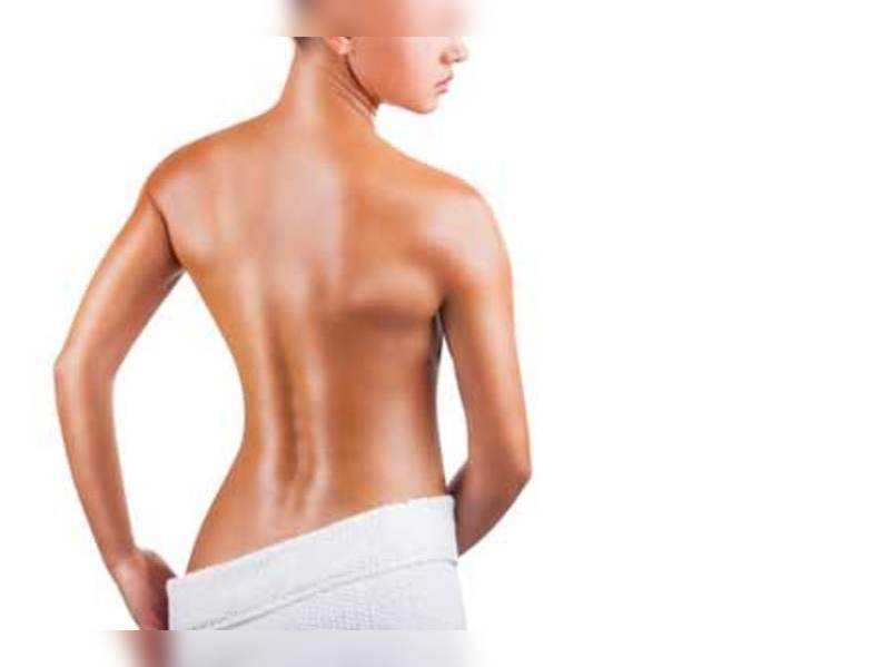 Back Acne What Are Causes Symptoms Treatment Prevention