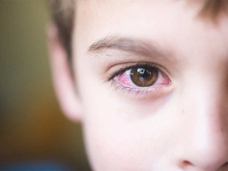 Air pollution major cause of eye infection:Doctors
