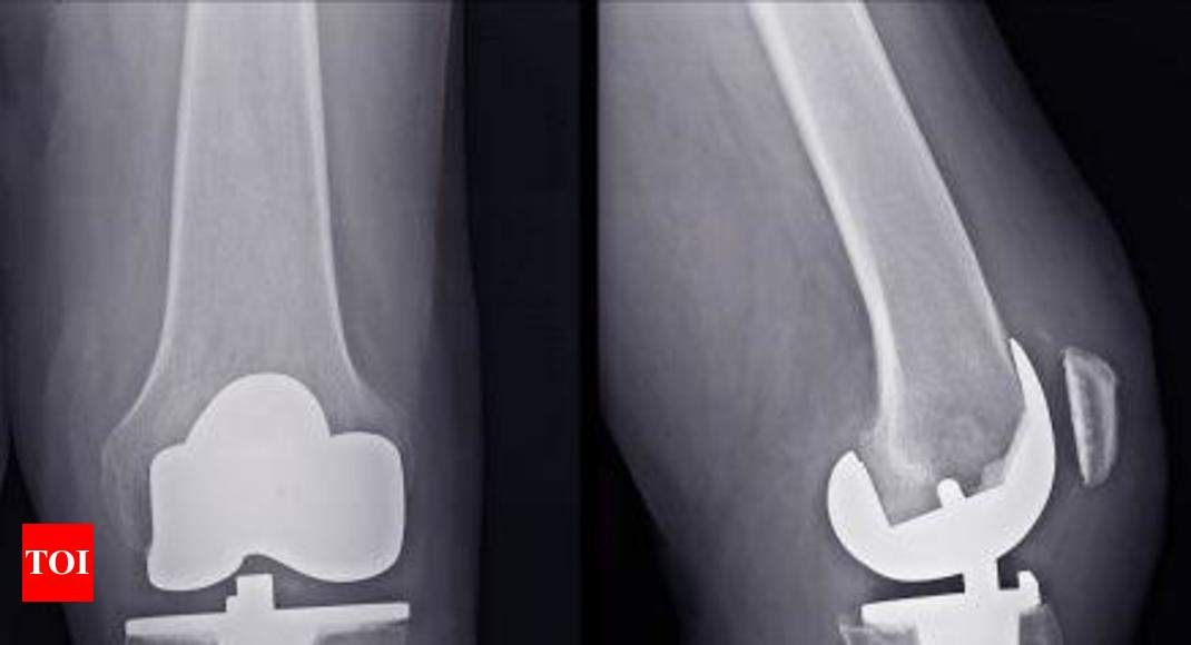 Special Knee Designed To Fit A Womens Anatomy Chandigarh News