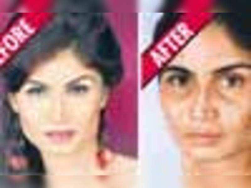 Model's face disfigured at Shilpa Shetty's spa