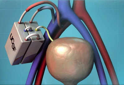 artificial kidney: Artificial kidney may hit market by end