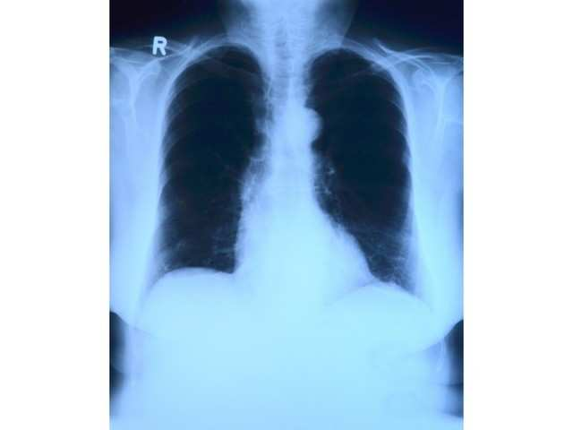 This AI system can detect lung cancer better than humans, claim researchers