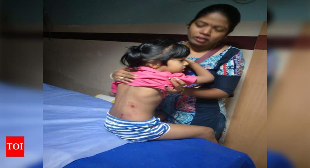 Stray Dog Attacks 2 Children 3 Women Bengaluru News Times Of
